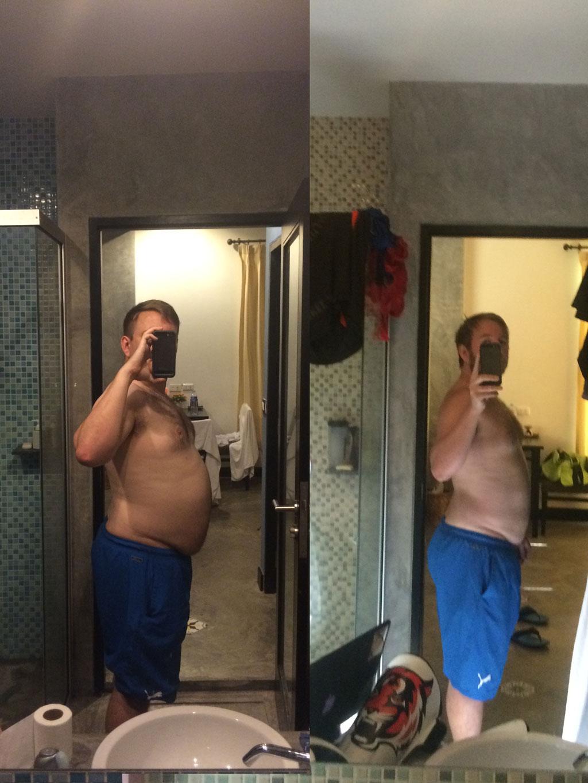 before after weightloss